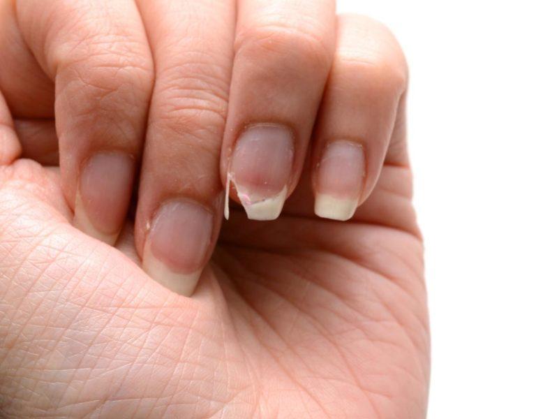 Nếu móng tay quá yếu hãy tập trung dưỡng móng trước